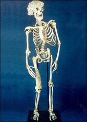 Joseph_Merrick_skeleton-elephant man