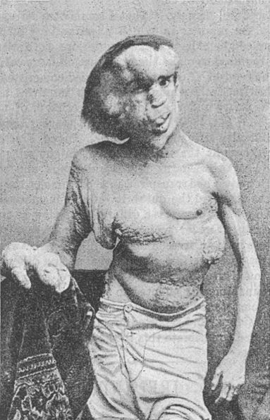 Josephmerrick1889-the elephant man