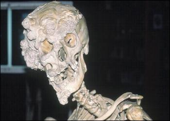 elephant man skull