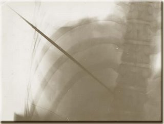 x ray of extreme man MIRIN DAJO