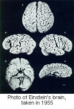 einstein-brain-after-death