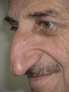 Mehmet-Ozyurek-nose