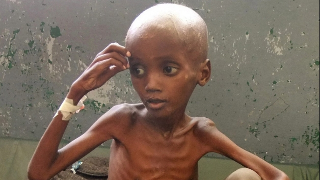 child-in-hospital-in-somalia-affected-by-famine