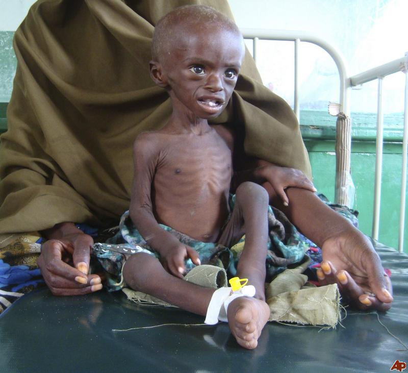 god-save-this-somalian-child-from-famine
