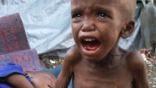 we-should-help-this-little-somalian-child