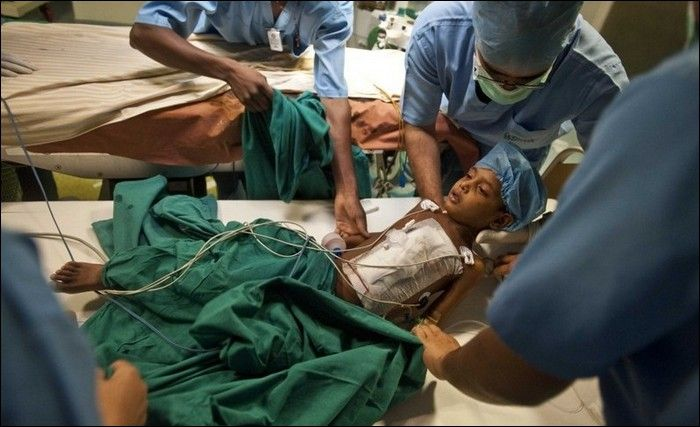parasitic-twin-deepak-after-operation