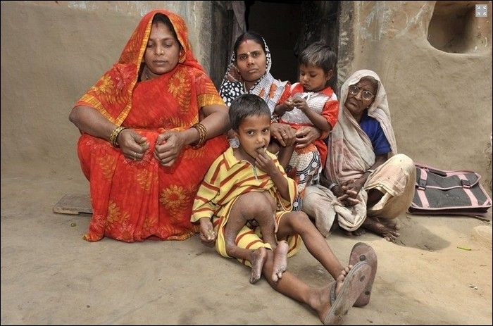 parasitic-twin-deepak-with-his-family-in-his-village