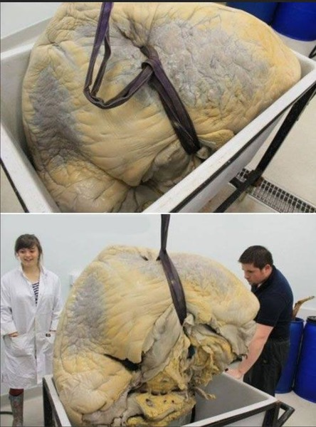 blue-whales-heart-original-image-weighs-600kg