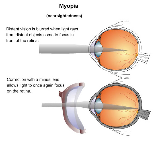 myopia-shortsightedness-basic