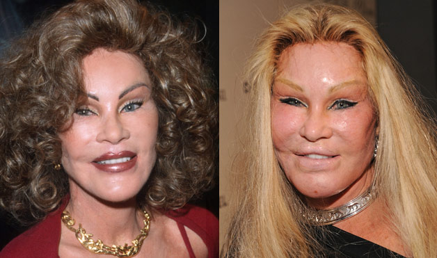 Plastic-Surgery-gone-wrong