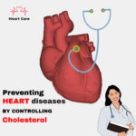 Control-Cholesterol